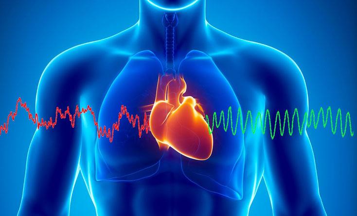 Migraine et apport de la cohérence cardiaque
